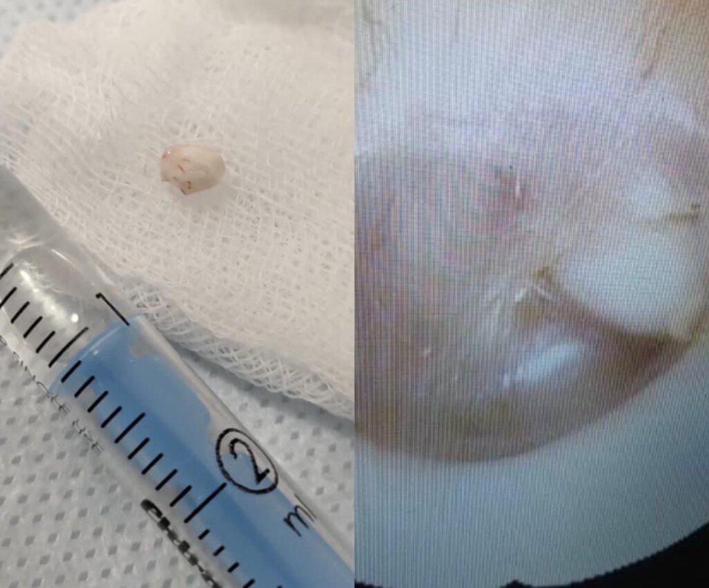 Застосували новий метод: львівські лікарі видалили пухлину у 4-річної дитини (фото)